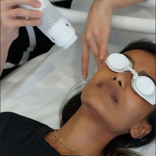 Types Of Laser Hair Removal Treatments